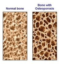 osteoporosis Shelbourne physiotherapy victoria bc
