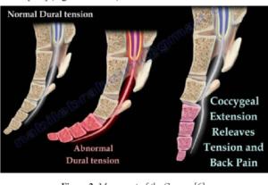 Tailbone coccyx pain victoria BC