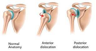 dislocated shoulder Victoria bc